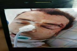 """""""عماد العتابي"""" يخضع لعملية في الرأس بعد إصابته في الحسيمة"""